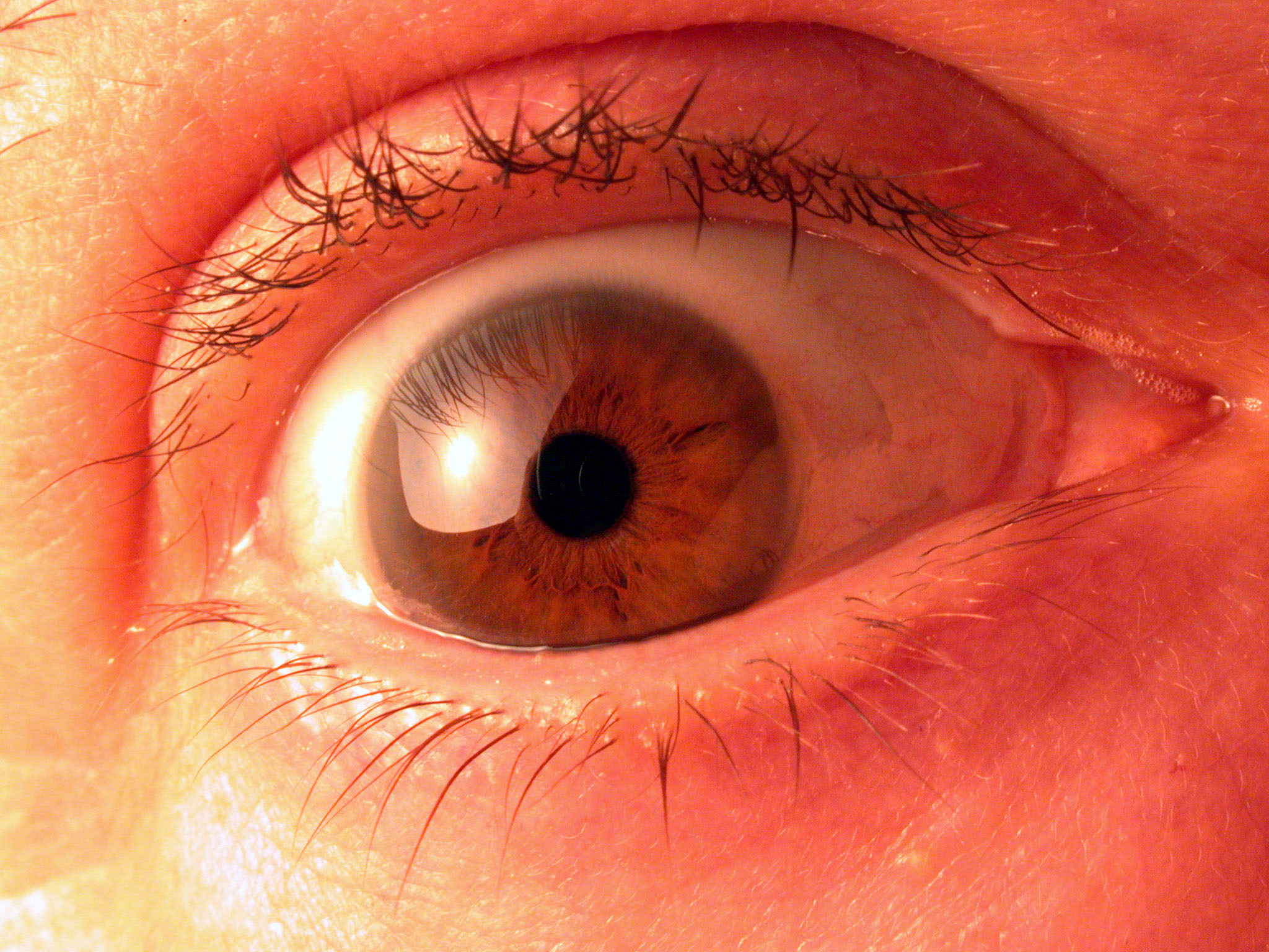 Contact lens users urged to be vigilant after outbreak of rare infection