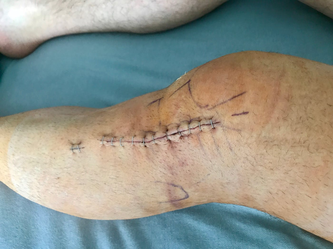 Richard Hammond Shows Off His X Ray And Scars From The