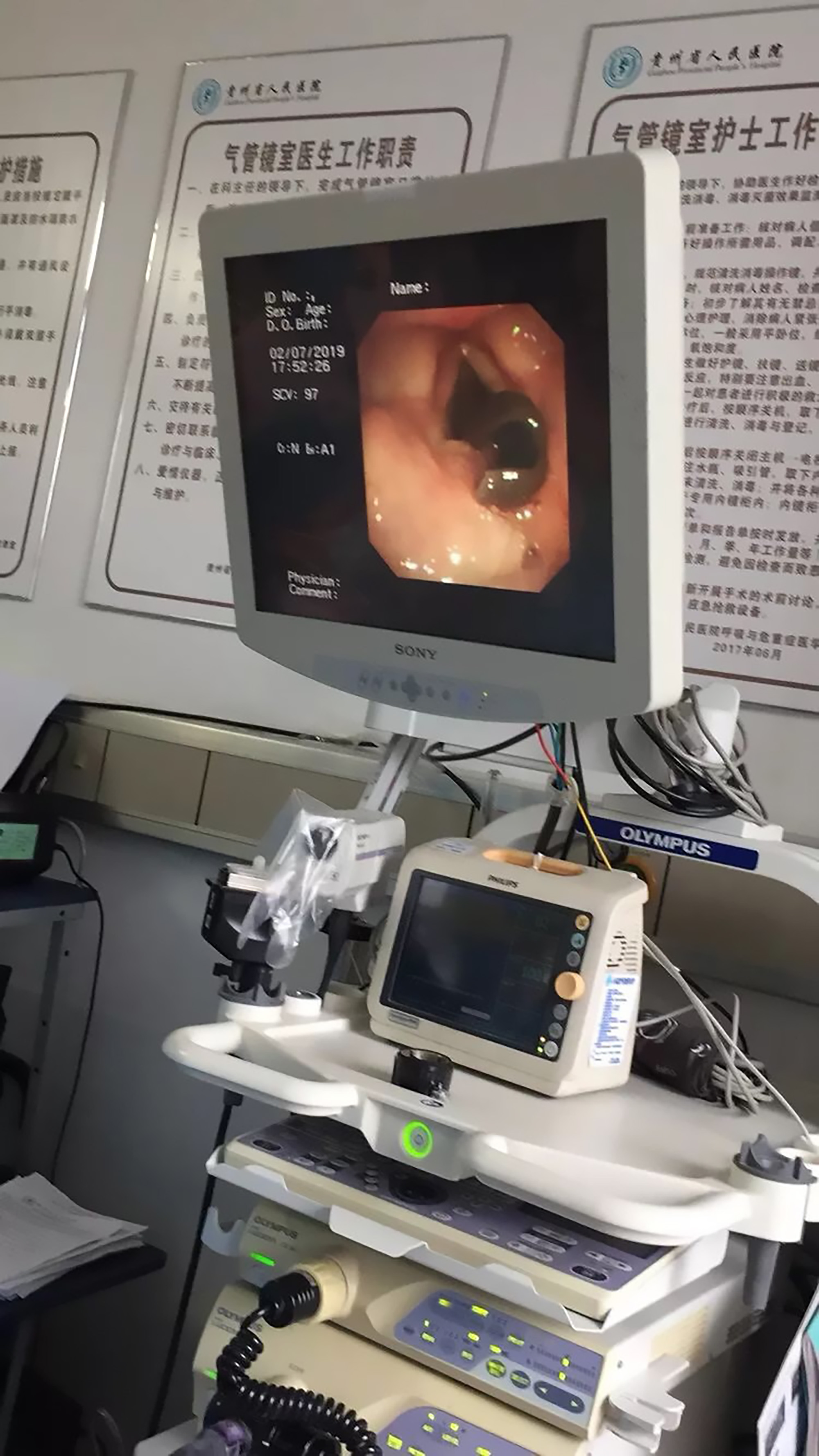 Doctors froze the parasite with dry ice before removing it. Credit: AsiaWire