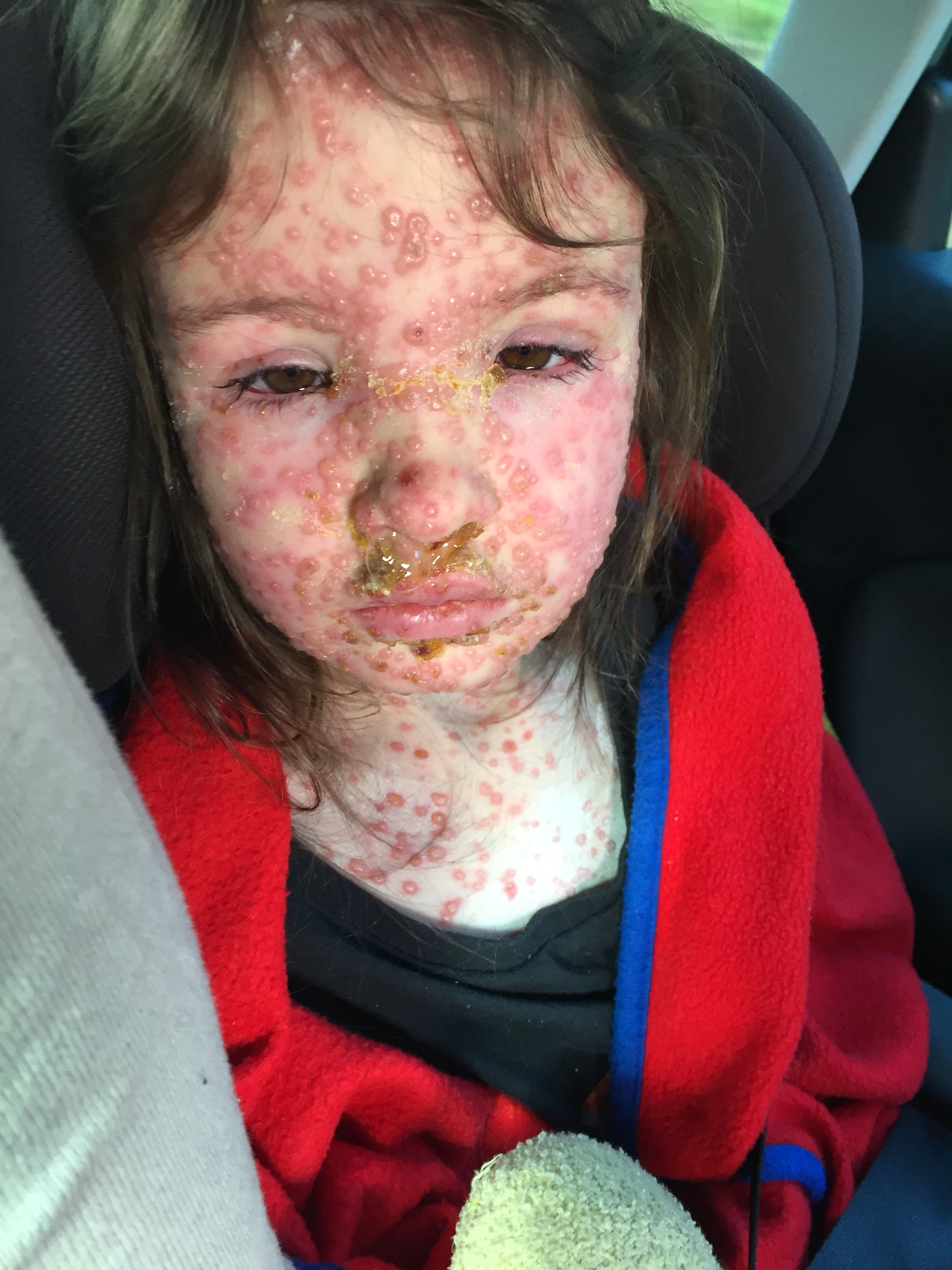 Five Year Old With Worst Chicken Pox Ever Was Turned Away From A E