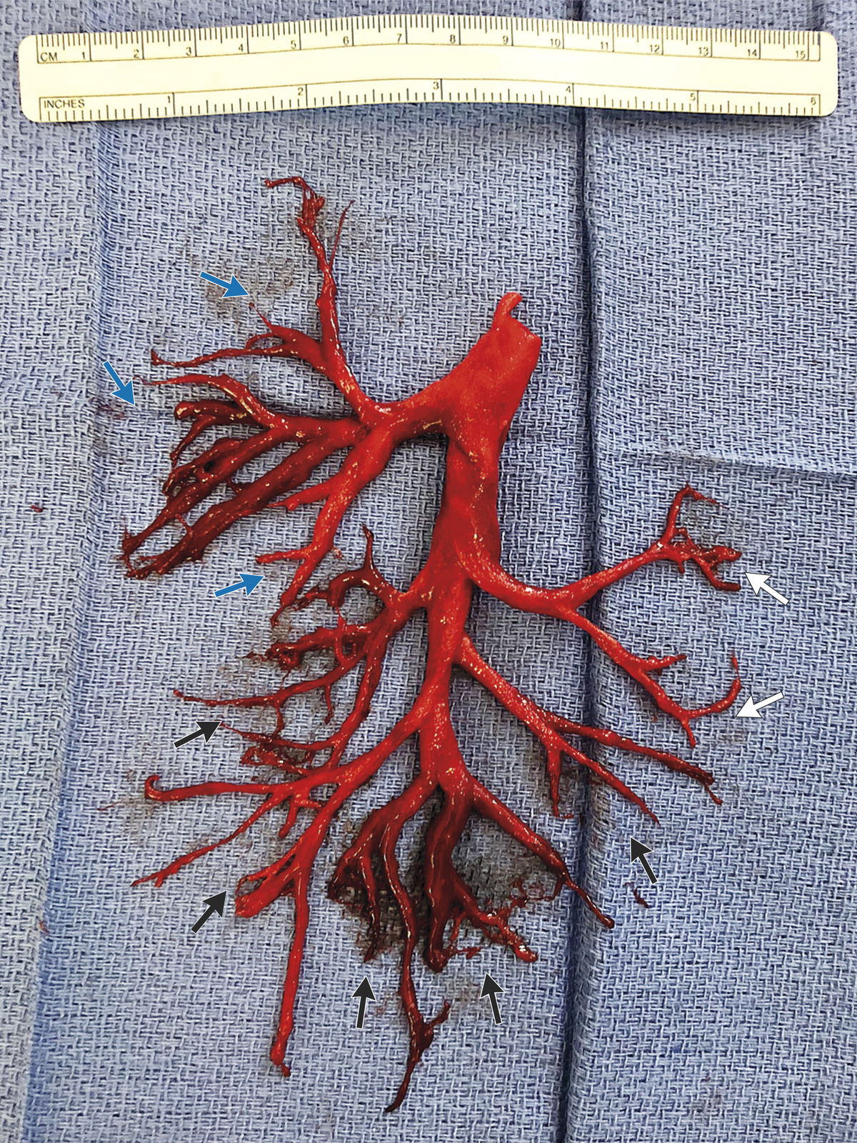 The man coughed up the right bronchial tree. Credit: NEJM