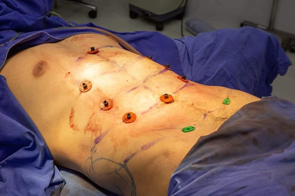 The fat is sucked out to create a six pack effect. Credit: Facebook/Masterpiece Hospital