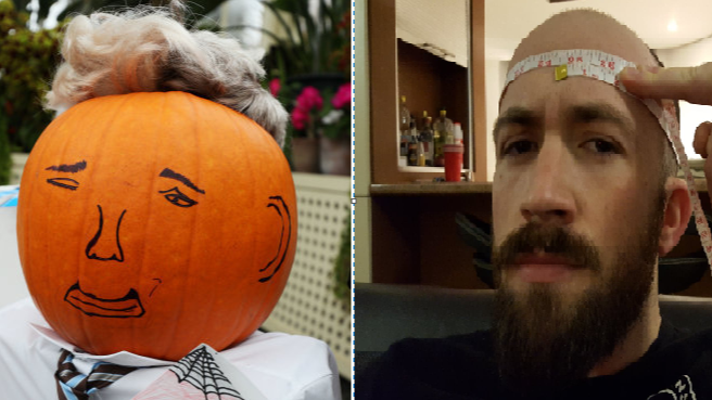 The Incredibly Inspiring Story Of The Man With The Upside Down Head Ladbible