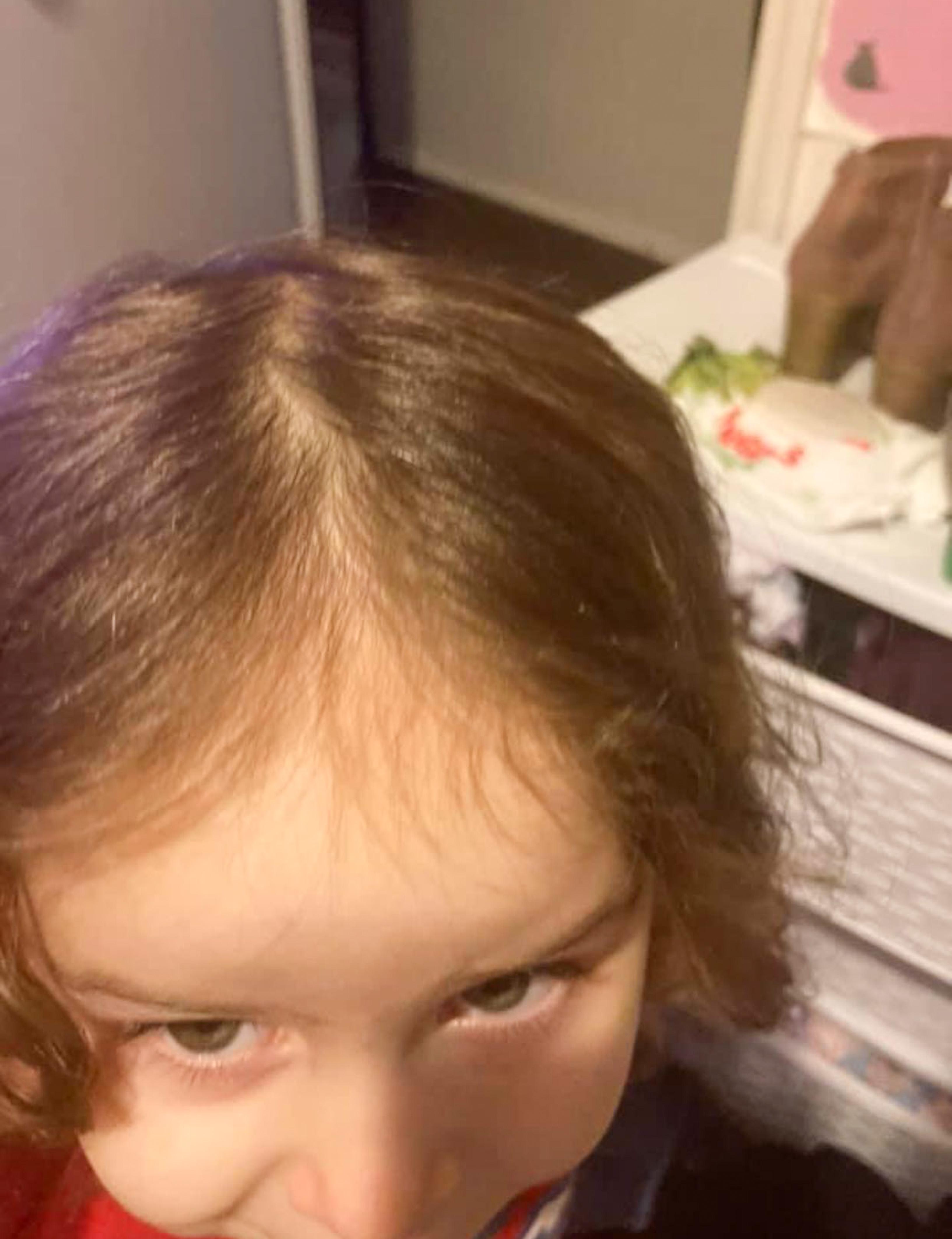 Mum Claims Johnson's Baby Shampoo Left Her Little Girl Going Bald