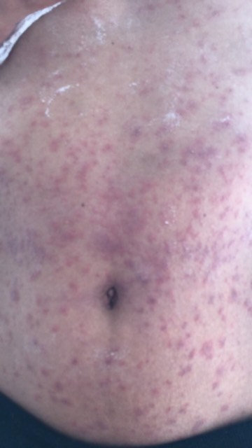 A rash from the caterpillars. Credit: SWNS