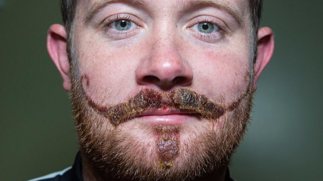 Leicester Man Left With Horrific Moustache Scar After Henna Tattoo Fail