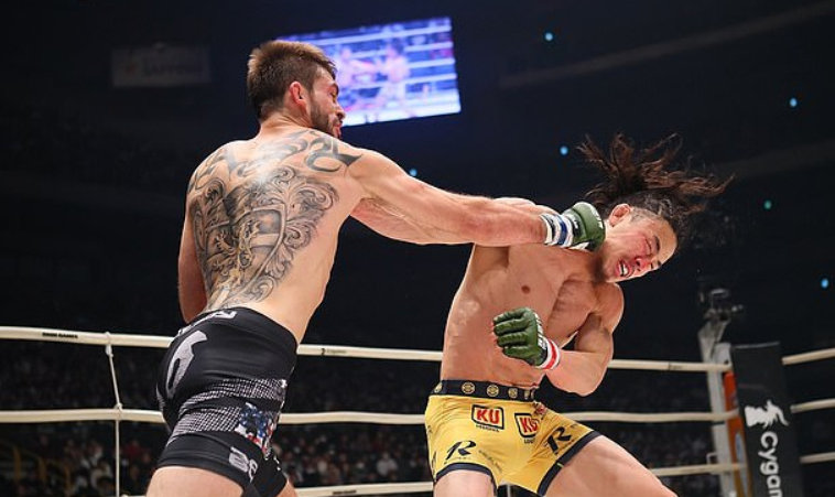 Yusuke Yachi was left with a devastating eye injury during his fight with Johnny Case. Credit RIZIN