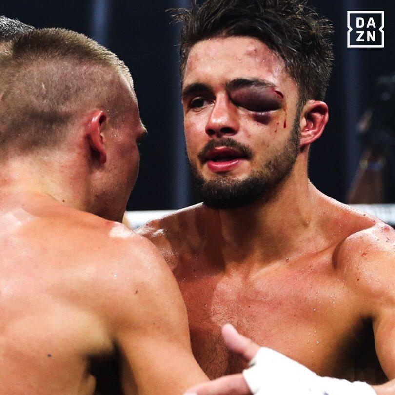 Anthony Yigit Suffers Gruesome Eye Injury, Fight Gets