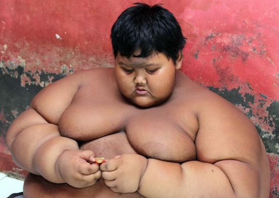 'World's Fattest Child' Put On Crash Diet To Save His Life