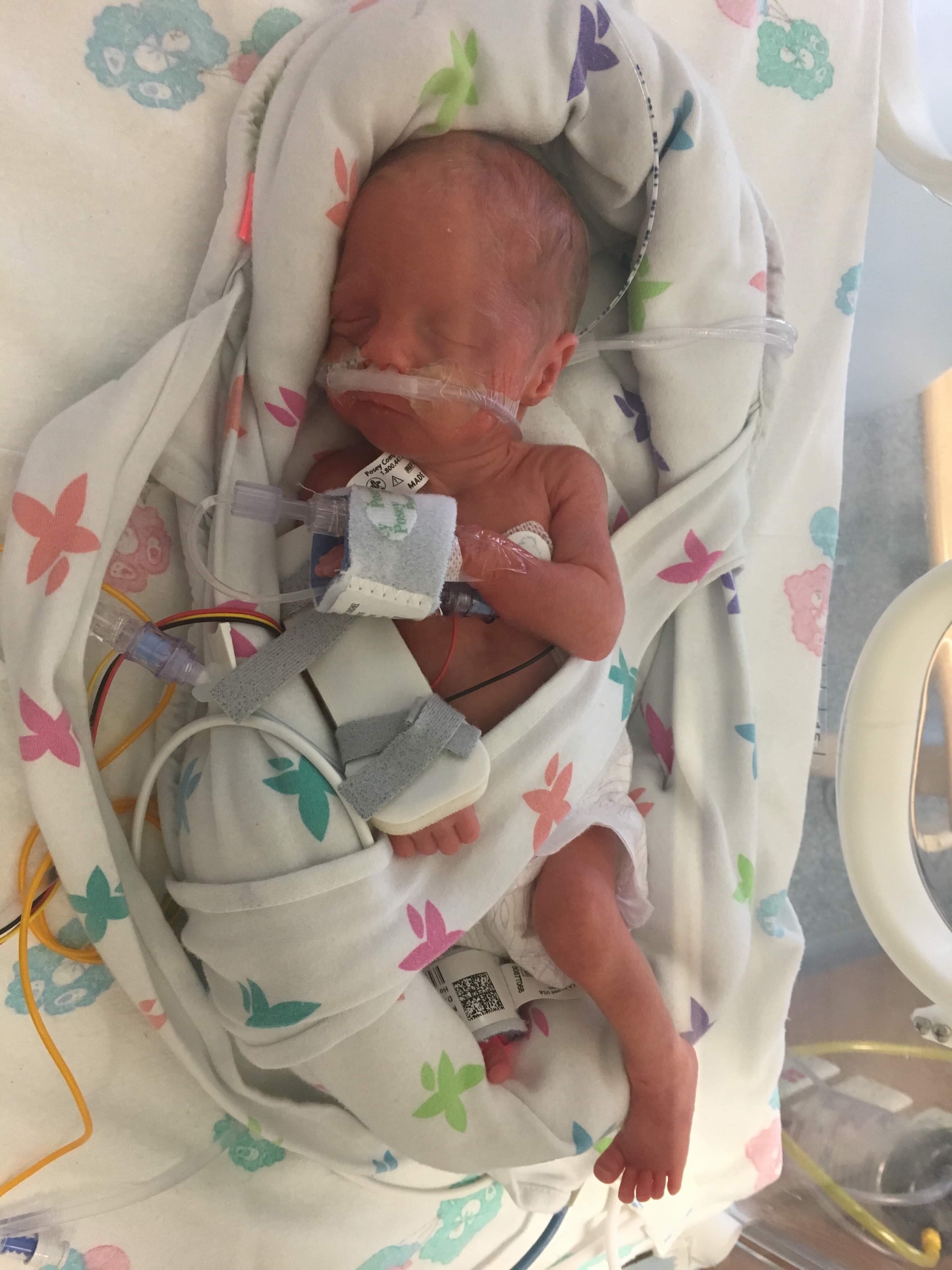 Baby Ocean Grace in hopsital. Credit: MEN Media